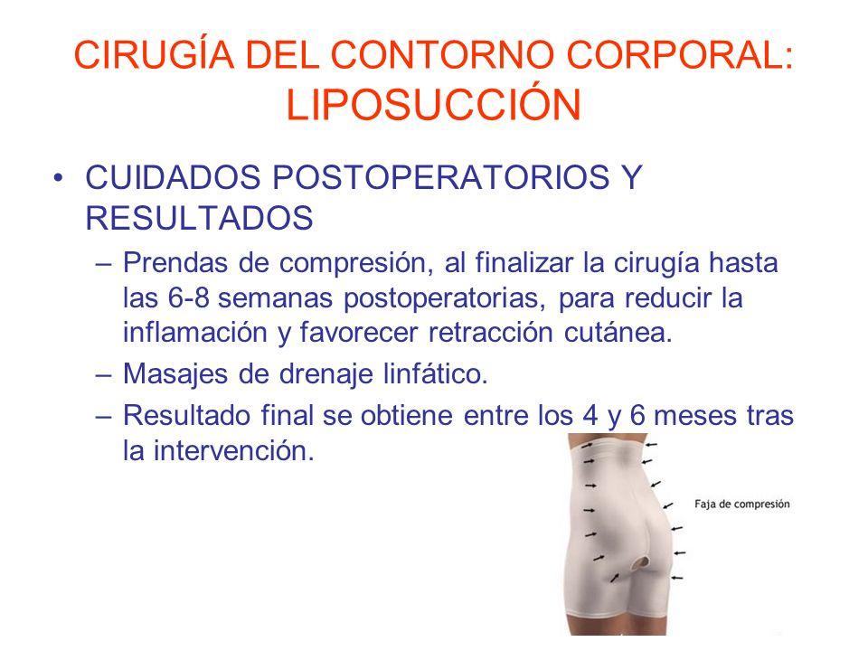 CIRUGÍA DEL CONTORNO CORPORAL: LIPOSUCCIÓN