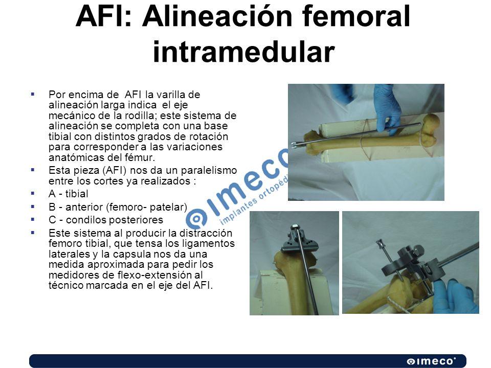 AFI: Alineación femoral intramedular