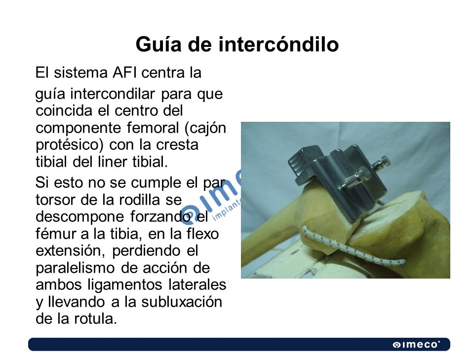 Guía de intercóndilo El sistema AFI centra la