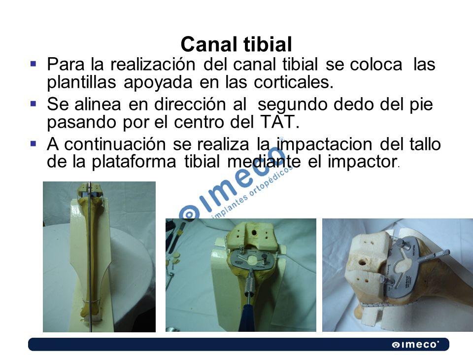 Canal tibial Para la realización del canal tibial se coloca las plantillas apoyada en las corticales.