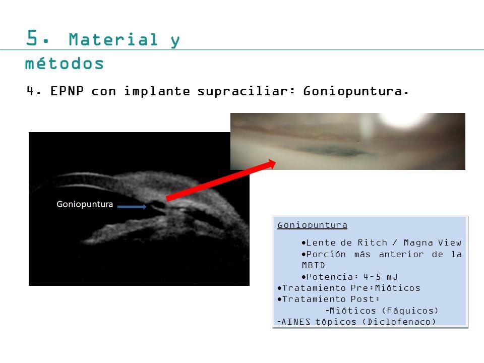 5. Material y métodos 4. EPNP con implante supraciliar: Goniopuntura.