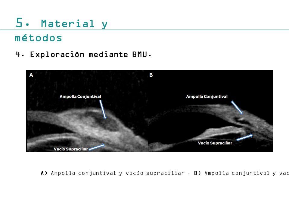 5. Material y métodos Exploración mediante BMU.