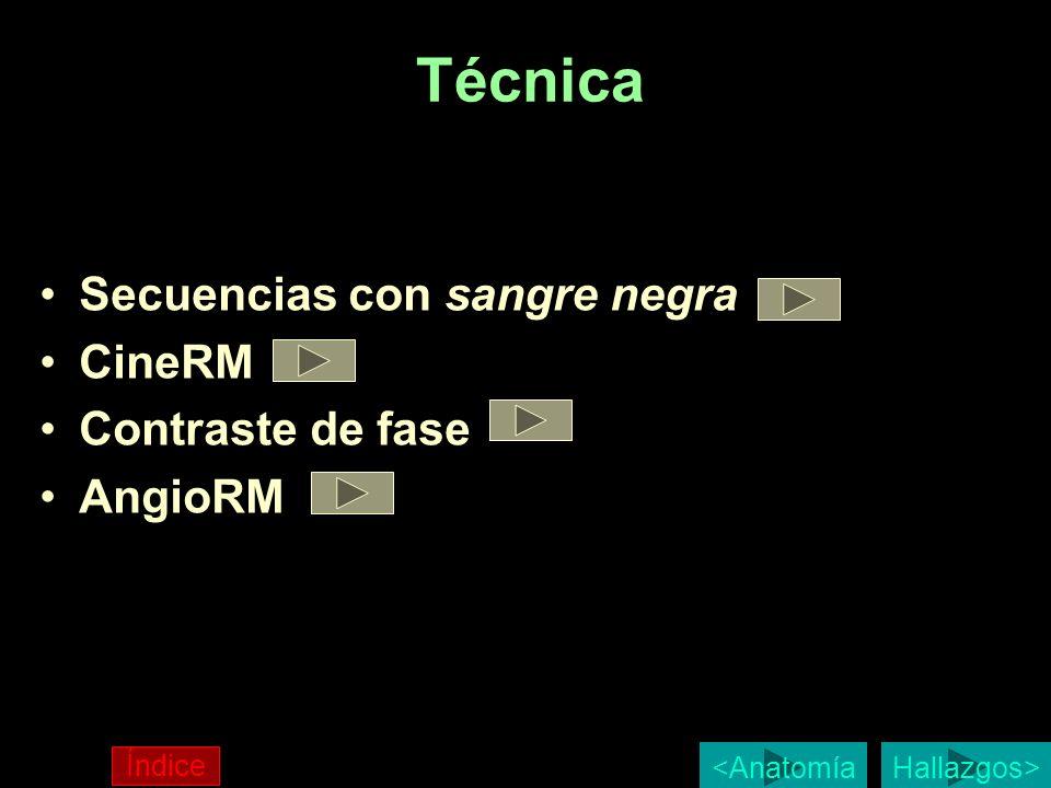 Técnica Secuencias con sangre negra CineRM Contraste de fase AngioRM