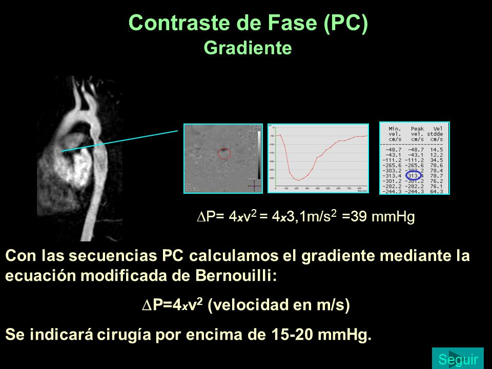 Contraste de Fase (PC) Gradiente
