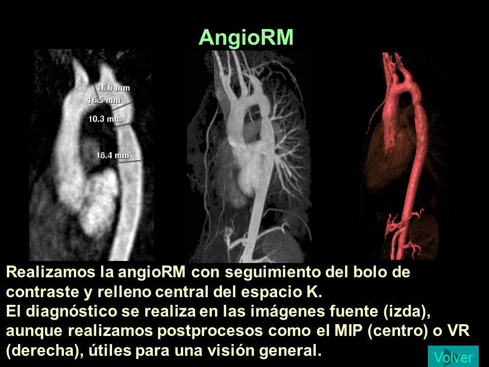 AngioRM Patricia Gonzalo Segura 15 a, coartación al diagnóstico.