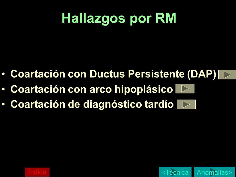 Hallazgos por RM Coartación con Ductus Persistente (DAP)