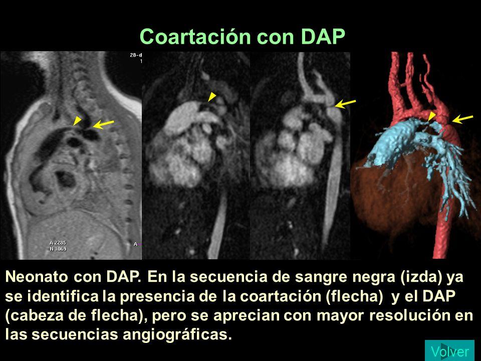 Coartación con DAP Bustamante 6 dias. Coartación con ductus.