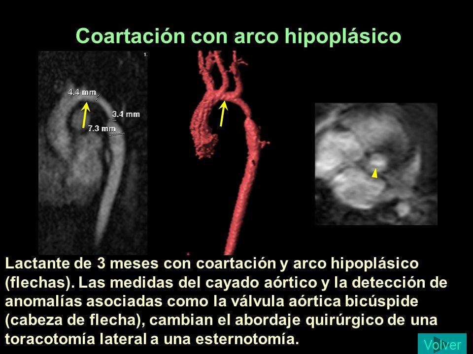 Coartación con arco hipoplásico
