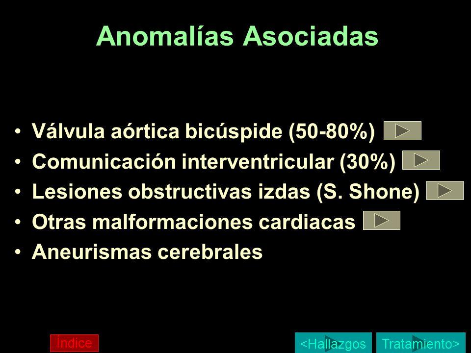 Anomalías Asociadas Válvula aórtica bicúspide (50-80%)