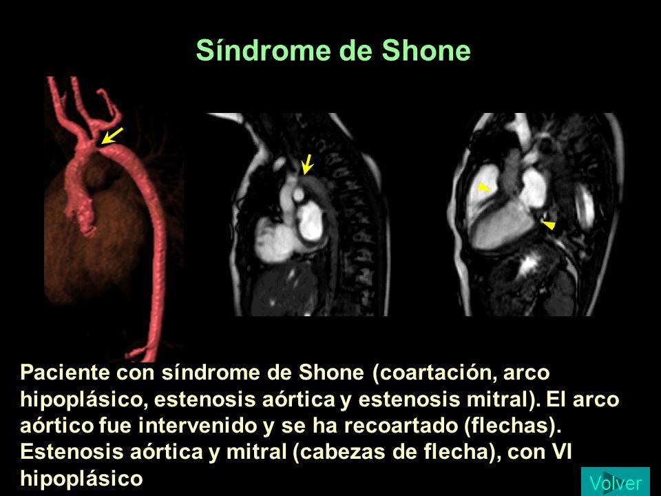 Síndrome de Shone Collado 11m SD Shone Qx con recoartacion.