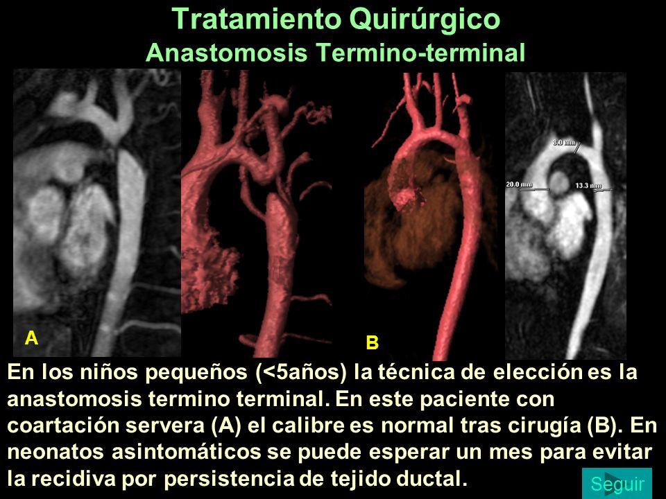 Tratamiento Quirúrgico Anastomosis Termino-terminal