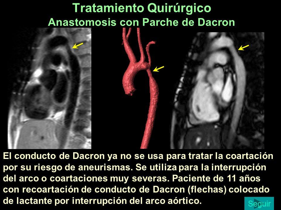 Tratamiento Quirúrgico Anastomosis con Parche de Dacron