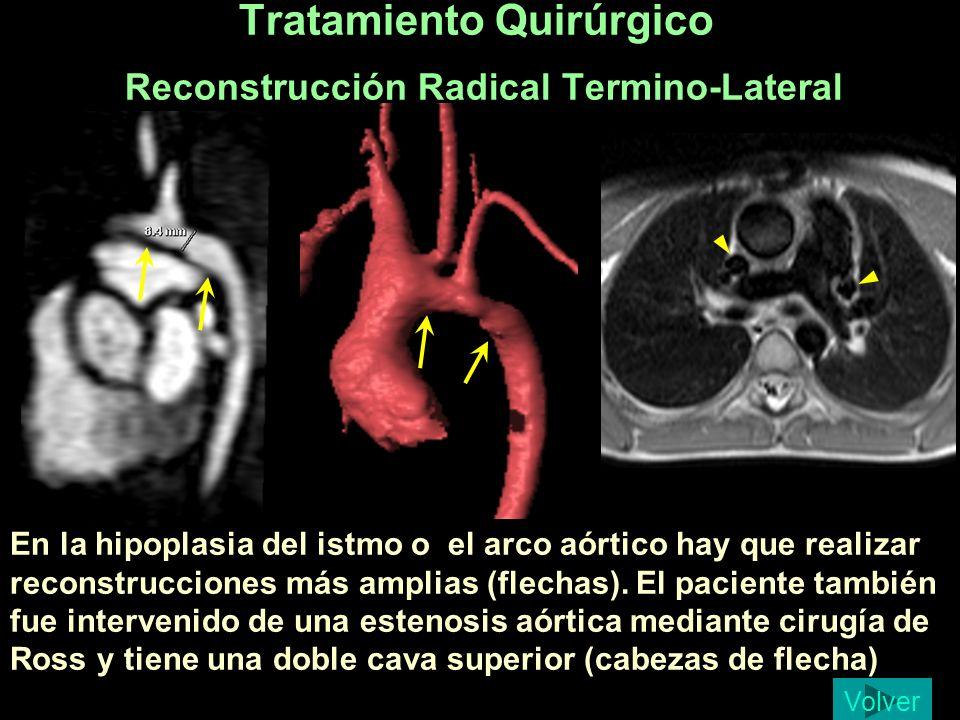 Tratamiento Quirúrgico Reconstrucción Radical Termino-Lateral