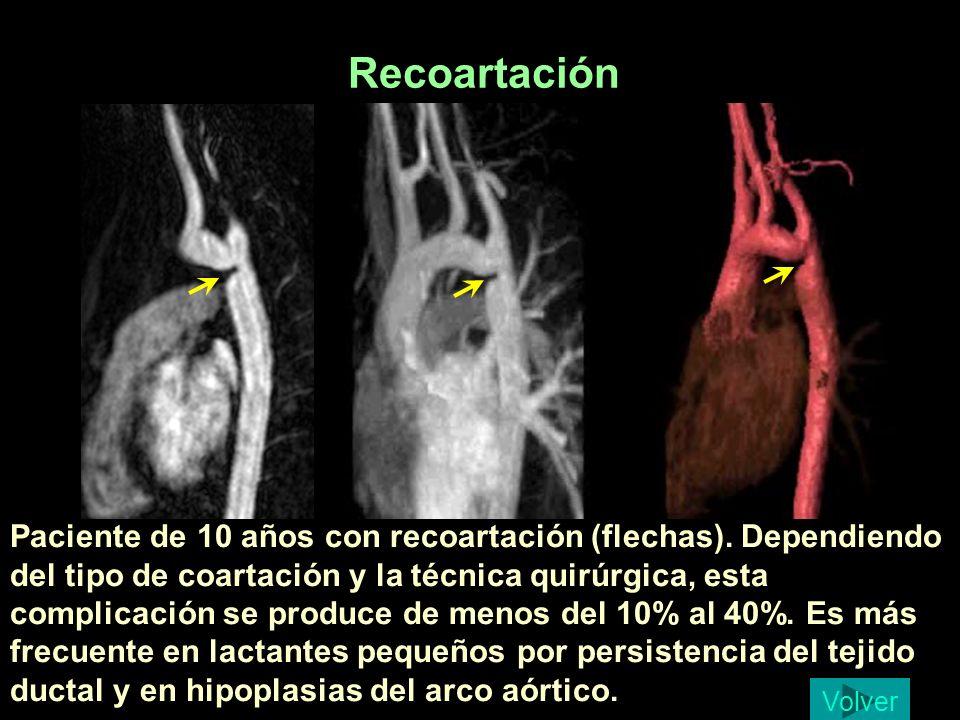 Recoartación Carbonero Ruiz, Pablo 10 a, recoartacion.