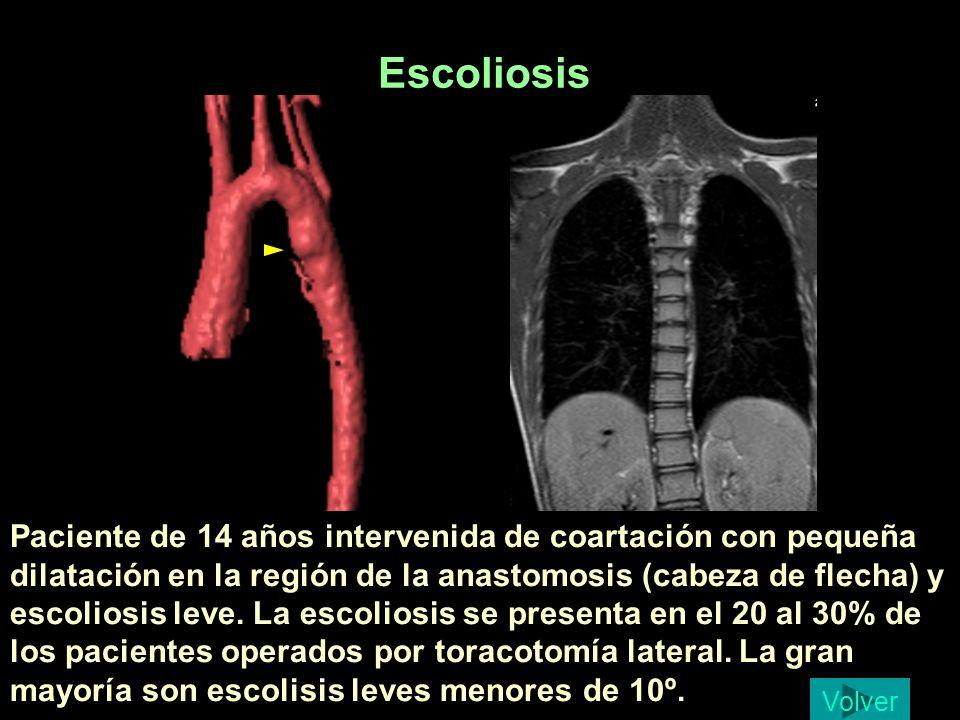 Escoliosis Diaz Garcia, Judit 14 a. Escoliosis leve.