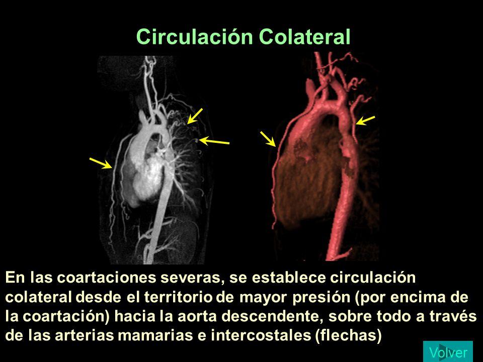 Circulación Colateral