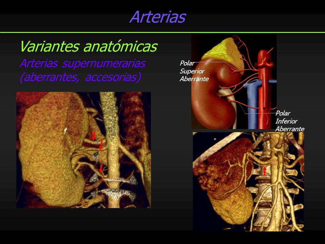 Arterias Variantes anatómicas
