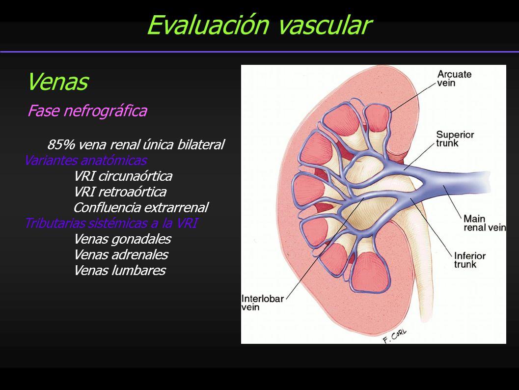 Evaluación vascular Venas Fase nefrográfica
