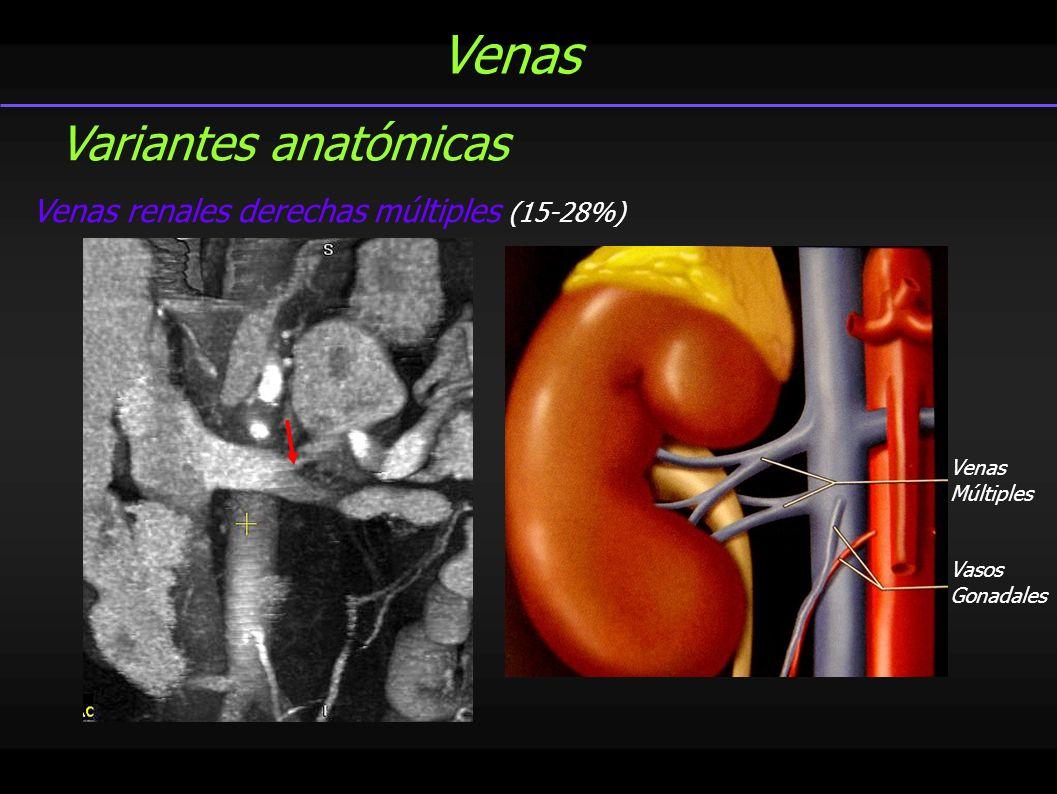 Venas Variantes anatómicas Venas renales derechas múltiples (15-28%)