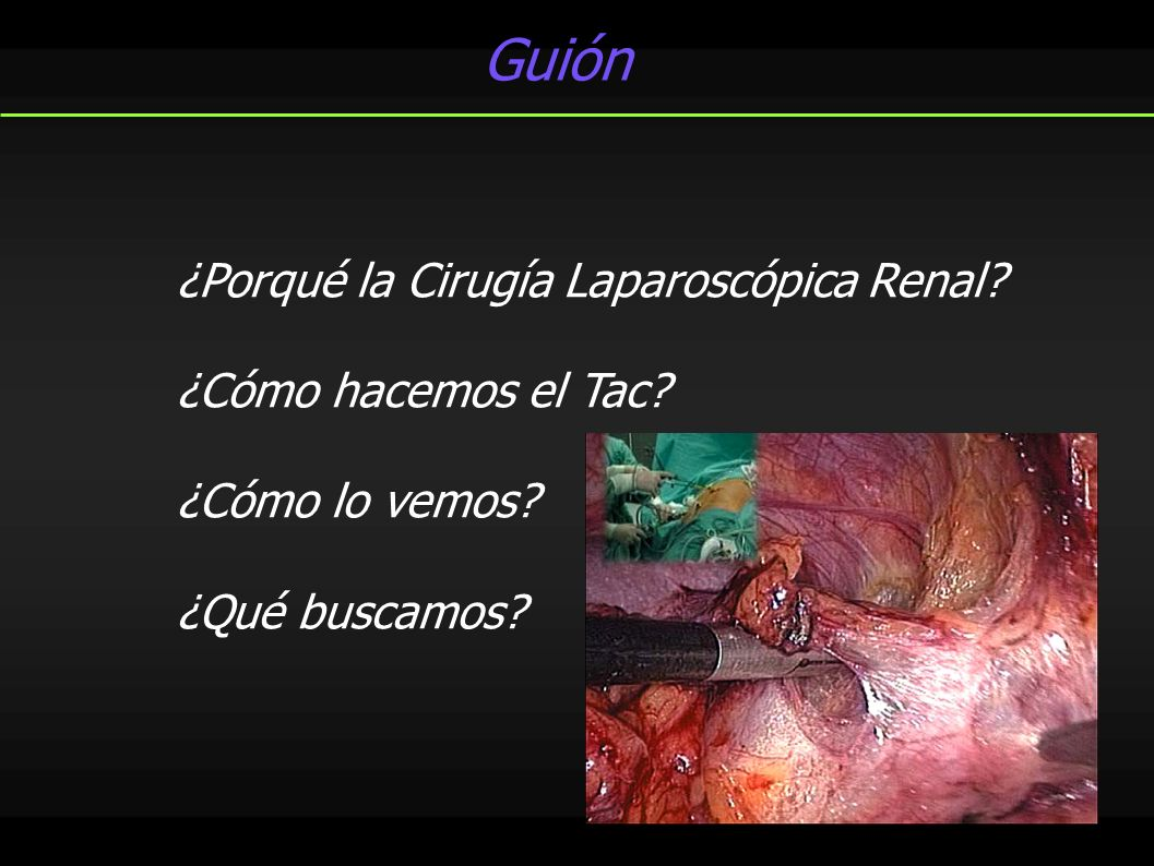 Guión ¿Porqué la Cirugía Laparoscópica Renal. ¿Cómo hacemos el Tac.