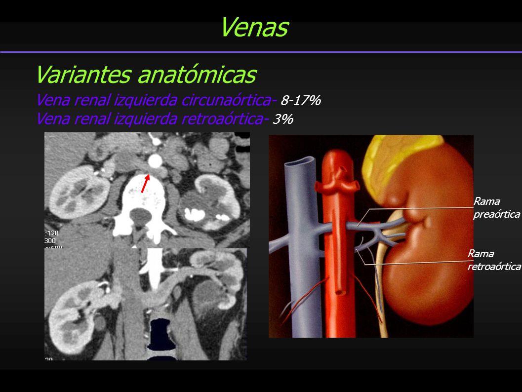 Venas Variantes anatómicas Vena renal izquierda circunaórtica- 8-17%