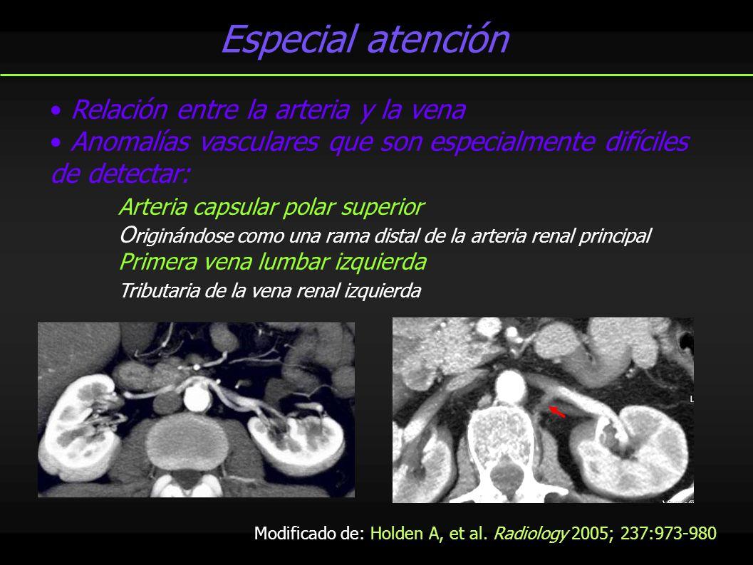 Especial atención Relación entre la arteria y la vena