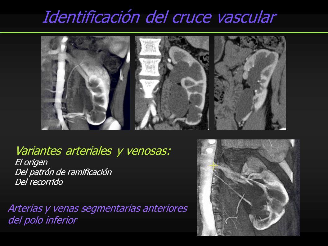 Identificación del cruce vascular