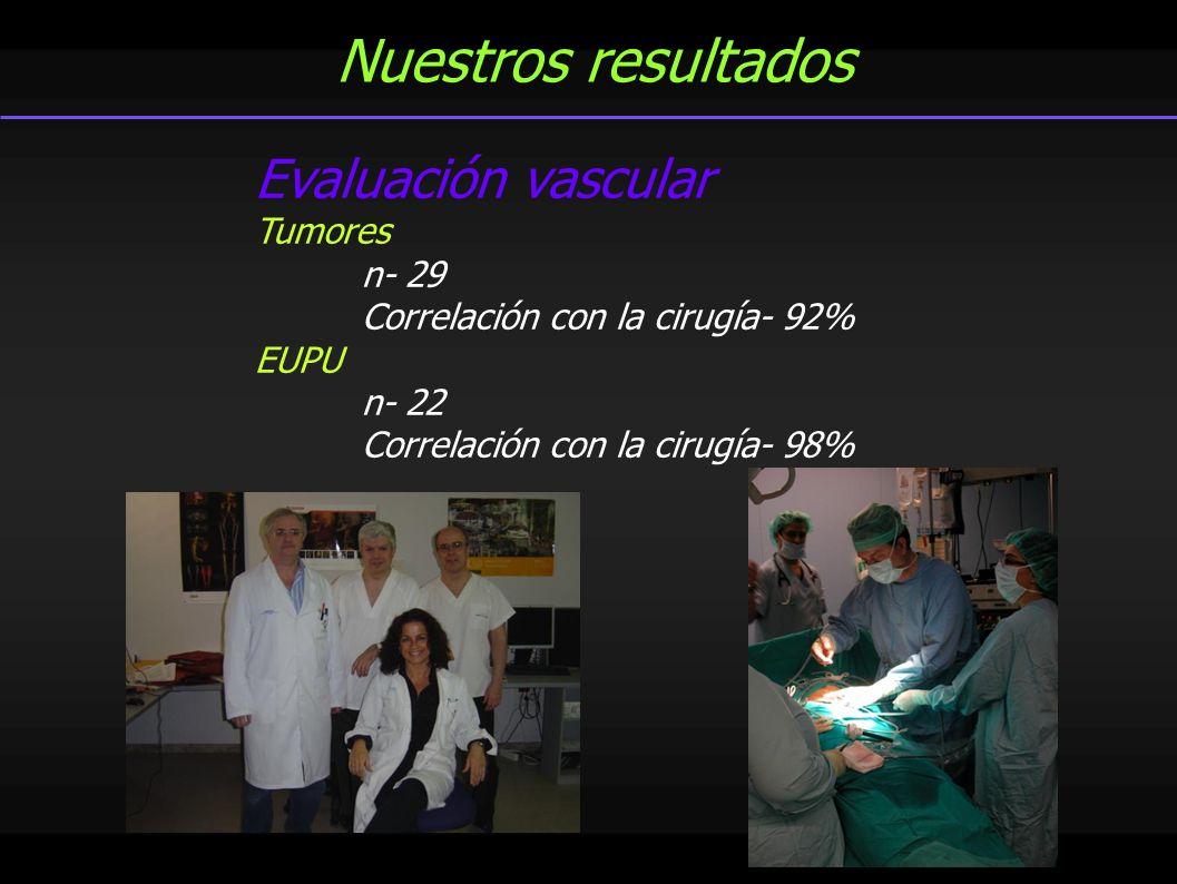 Nuestros resultados Evaluación vascular Tumores n- 29