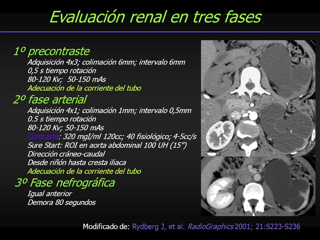 Evaluación renal en tres fases