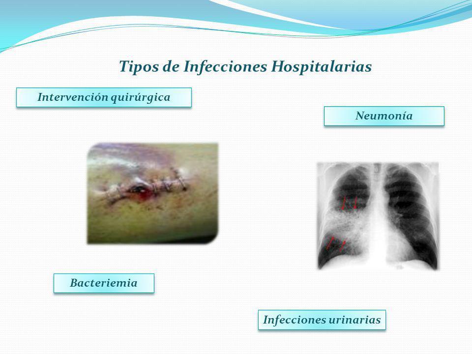 Tipos de Infecciones Hospitalarias