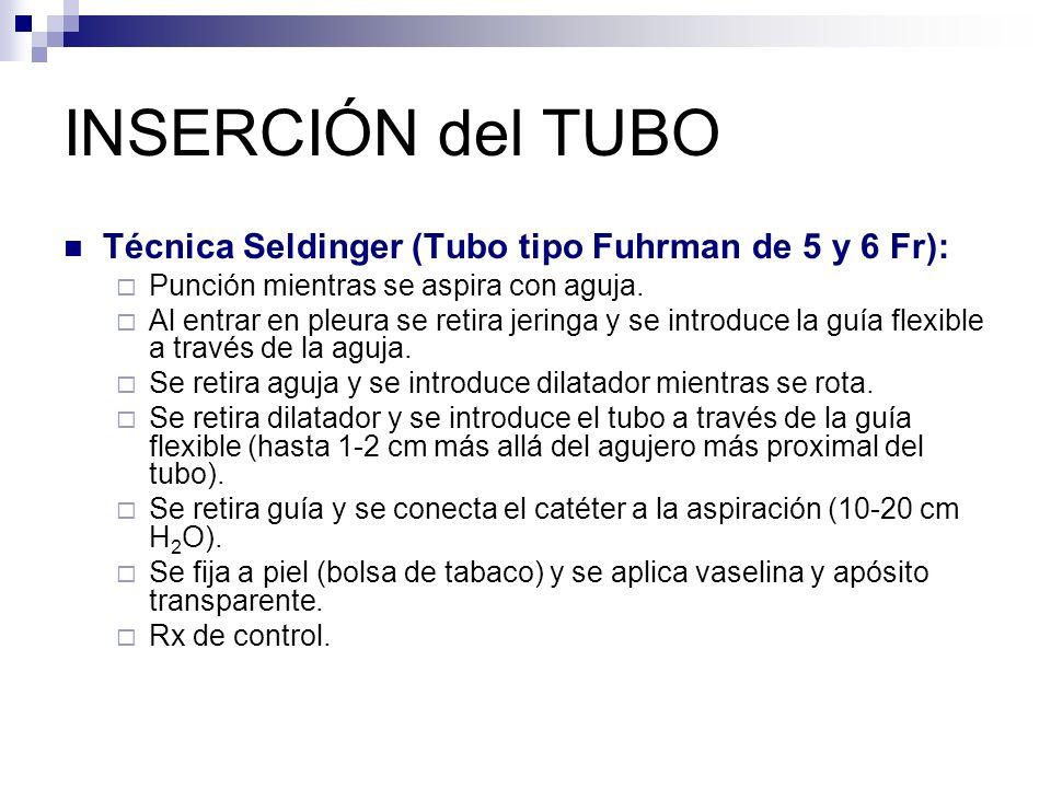 INSERCIÓN del TUBO Técnica Seldinger (Tubo tipo Fuhrman de 5 y 6 Fr):