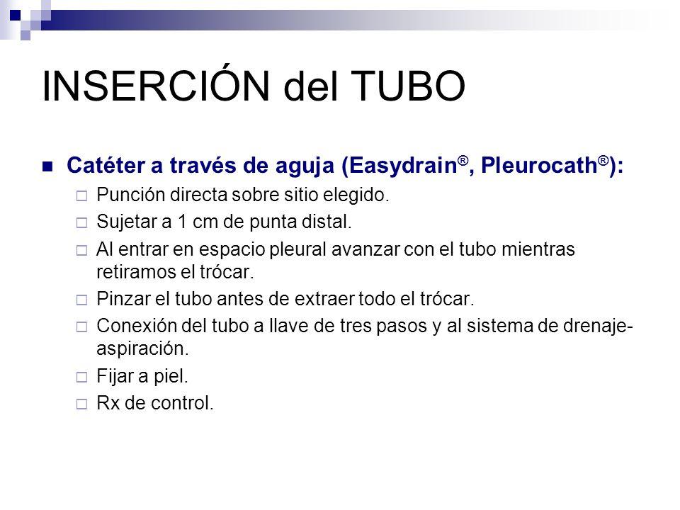 INSERCIÓN del TUBO Catéter a través de aguja (Easydrain®, Pleurocath®): Punción directa sobre sitio elegido.