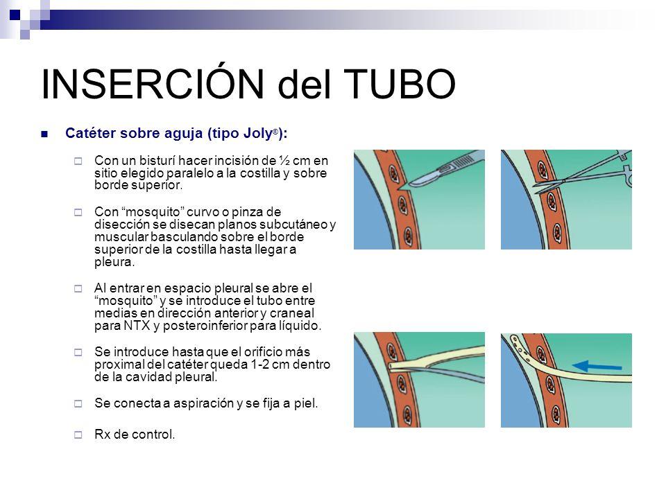 INSERCIÓN del TUBO Catéter sobre aguja (tipo Joly®):