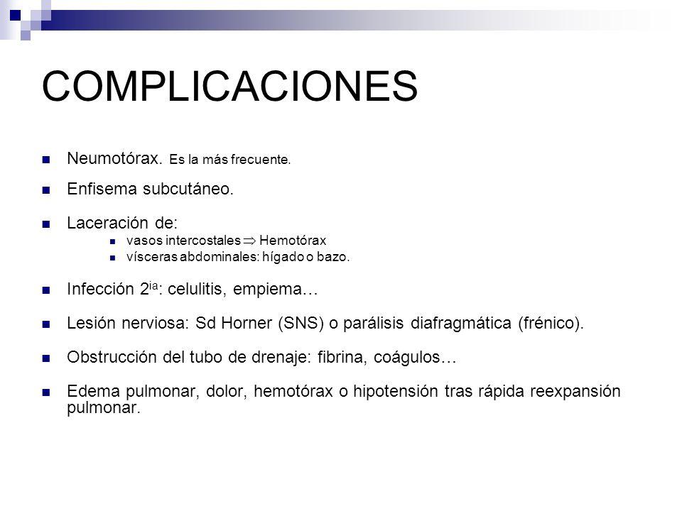 COMPLICACIONES Neumotórax. Es la más frecuente. Enfisema subcutáneo.