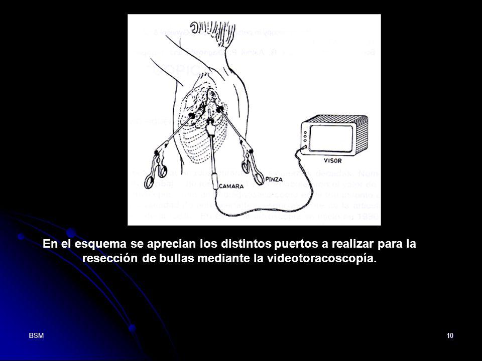 En el esquema se aprecian los distintos puertos a realizar para la resección de bullas mediante la videotoracoscopía. En la foto superior se visualiza la resección de una Bulla del vértice pulmonar a través de la videotoracoscopía.