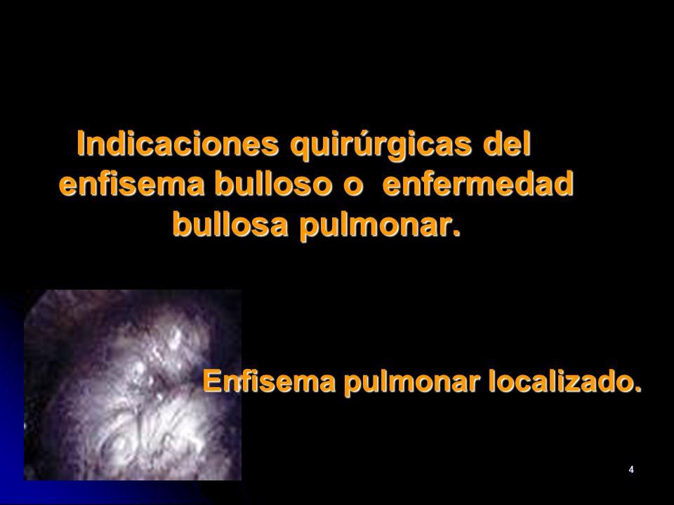 Enfisema pulmonar localizado.