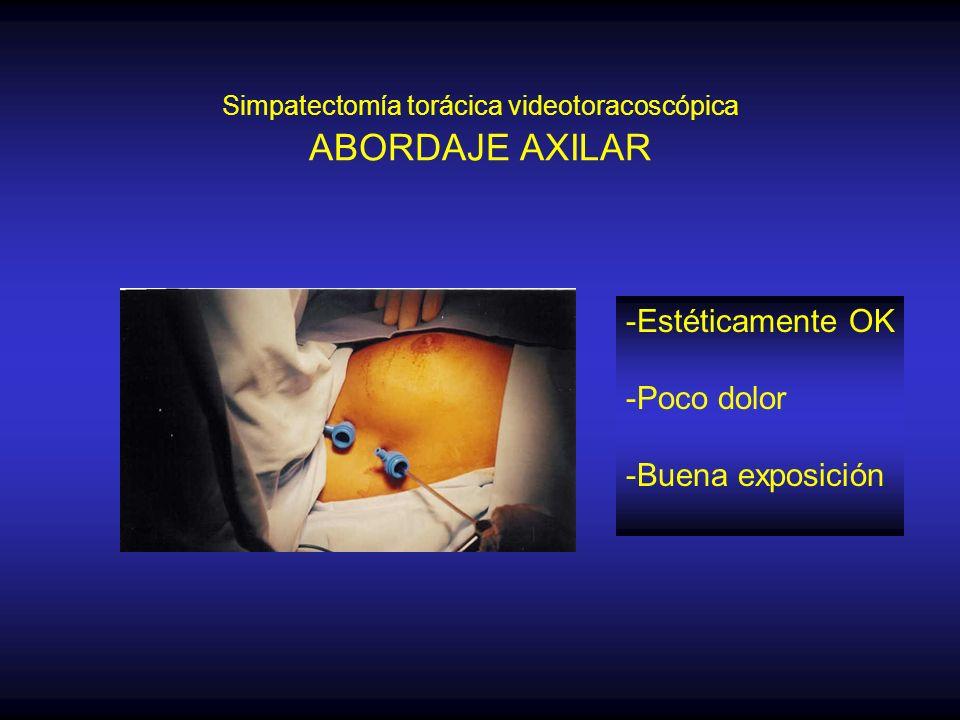 Simpatectomía torácica videotoracoscópica ABORDAJE AXILAR