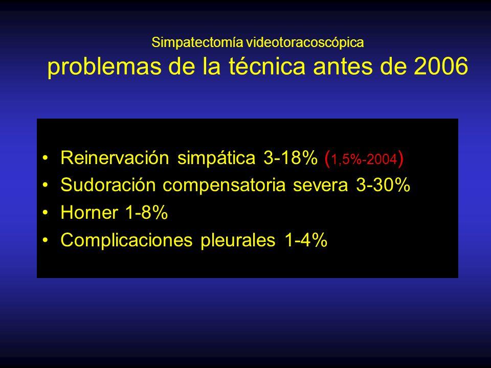 Simpatectomía videotoracoscópica problemas de la técnica antes de 2006