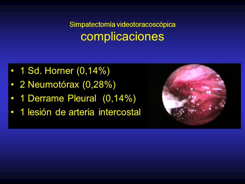 Simpatectomía videotoracoscópica complicaciones
