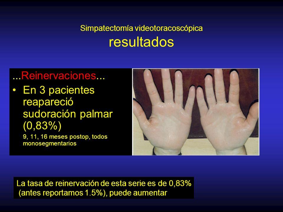 Simpatectomía videotoracoscópica resultados