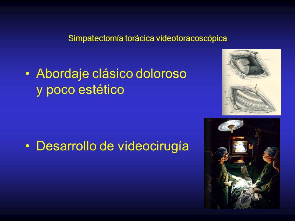 Simpatectomía torácica videotoracoscópica