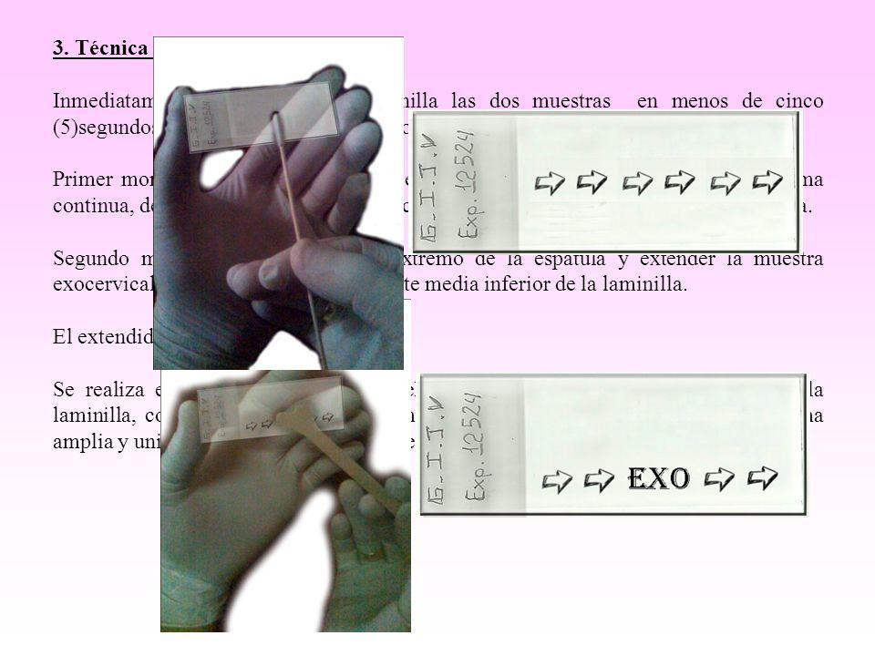 3. Técnica del extendido.