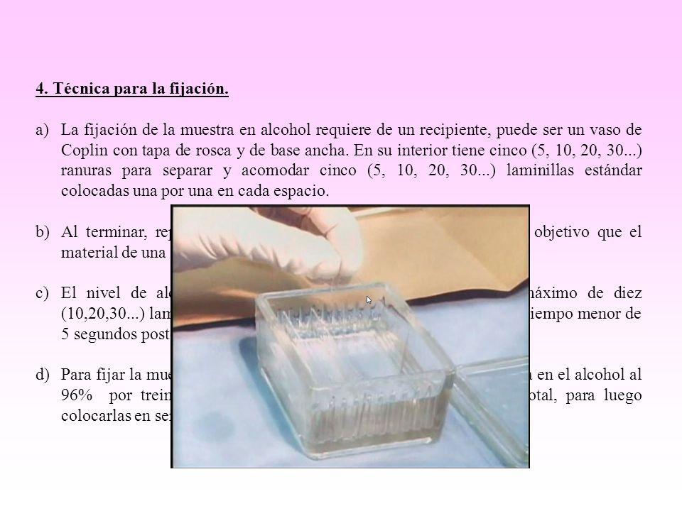 4. Técnica para la fijación.