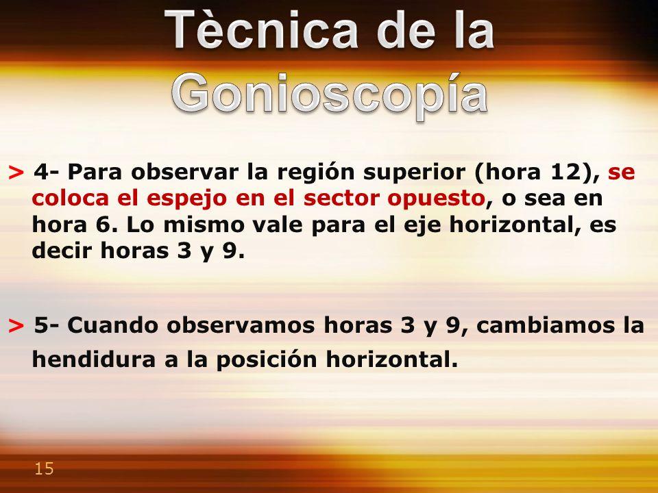 Tècnica de la Gonioscopía