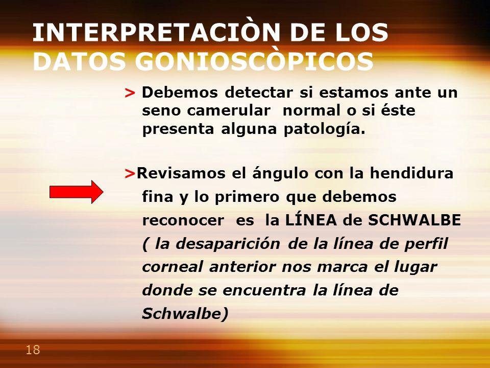 INTERPRETACIÒN DE LOS DATOS GONIOSCÒPICOS