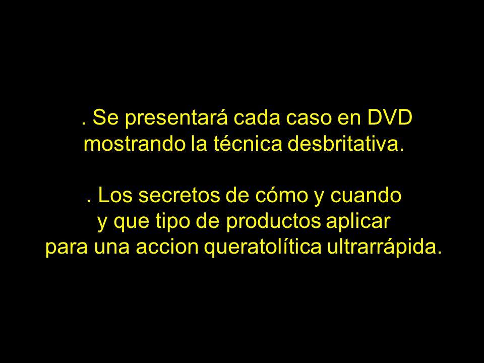 . Se presentará cada caso en DVD mostrando la técnica desbritativa.