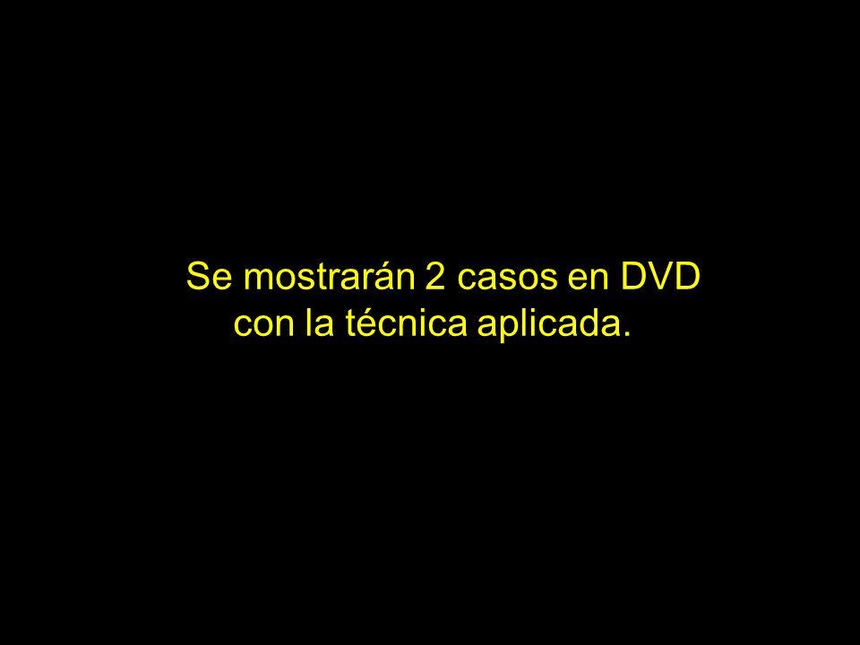Se mostrarán 2 casos en DVD con la técnica aplicada.