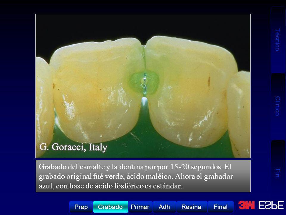 Grabado del esmalte y la dentina por por 15-20 segundos