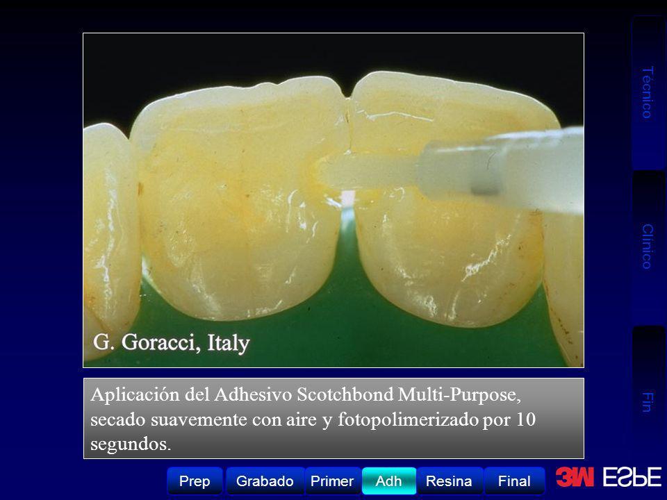 Aplicación del Adhesivo Scotchbond Multi-Purpose, secado suavemente con aire y fotopolimerizado por 10 segundos.