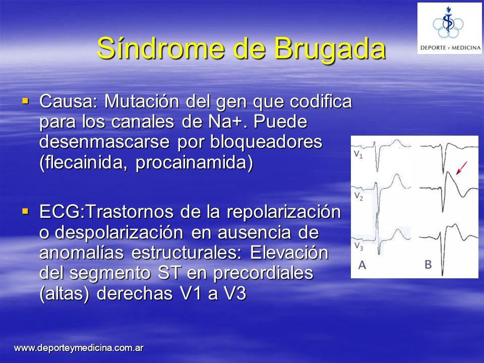 Síndrome de Brugada Causa: Mutación del gen que codifica para los canales de Na+. Puede desenmascarse por bloqueadores (flecainida, procainamida)